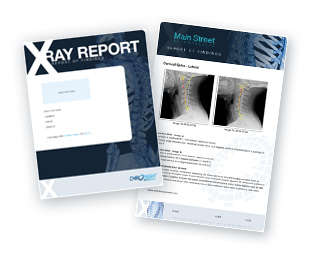 Image of Digital X-Ray Report