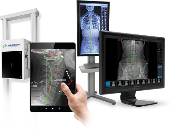 Biokinemetrics Digital X-ray